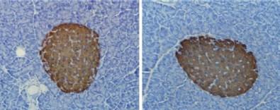 Suplementação com taurina pode ajudar na prevenção da obesidade e na resistência à insulina