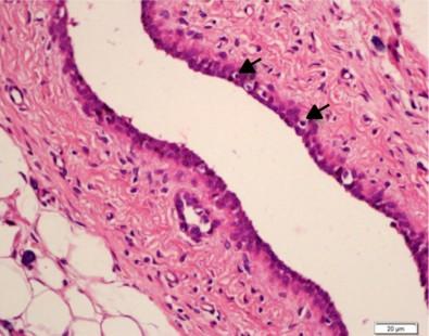 Dieta de ratos machos afeta risco de câncer de mama na prole feminina