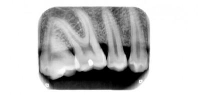 Alliage produzirá equipamentos de raios X digital
