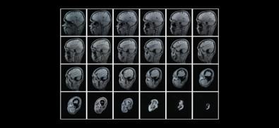 Una investigación abre el camino hacia un diagnóstico precoz del Alzheimer