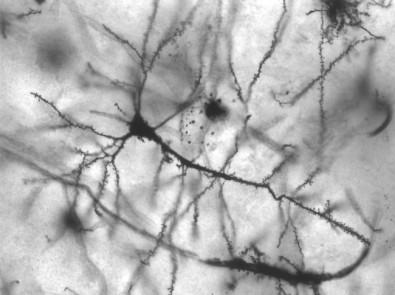 La restricción calórica puede beneficiar al cerebro, indica un estudio