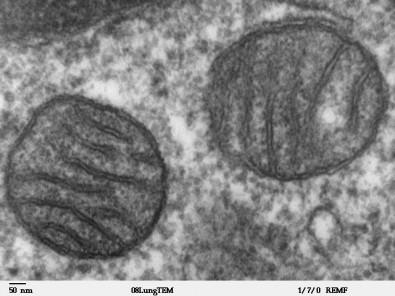 Grupo investiga como a restrição de calorias beneficia o funcionamento celular