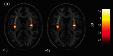 Investigan la estructura cerebral en personas transgénero