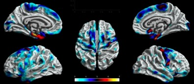 Neuroimaging techniques help identify brain alterations in patients with epilepsy