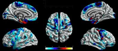 Una técnica de neuroimágenes puede explicar los efectos de la epilepsia en el cerebro