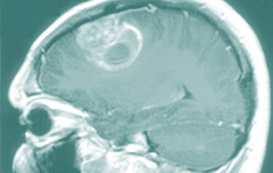 Biomarker panel can guide treatment of brain cancer