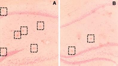 Atividades físicas e sociais protegem o cérebro de danos do Alzheimer