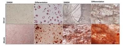 Células madre ayudan a recuperar un área cerebral dañada por ACV