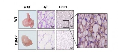 Droga para controle do colesterol tem ação contra caquexia associada ao câncer