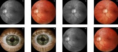 Aparelho portátil permite diagnosticar doenças oculares a distância