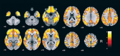 A method for detecting peptide accumulation linked to Alzheimer's is validated in Brazil