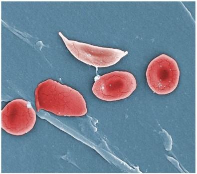 Las enfermedades falciformes aún requieren atención, advierte un grupo internacional de científicos