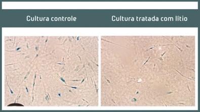 Efeito benéfico do lítio observado em idosos com Alzheimer começa a ser desvendado