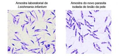 Nova espécie de parasita é identificada em caso fatal de leishmaniose visceral