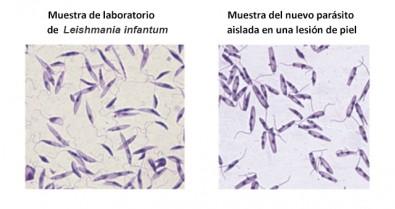 Detectan una nueva especie de parásito en un caso fatal de leishmaniasis visceral