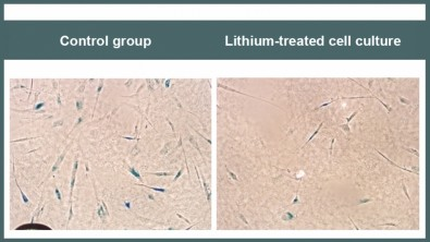 The benefits of lithium in older people with Alzheimer's disease are starting to be understood