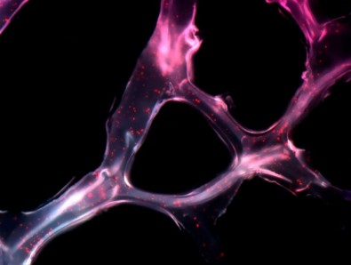 Descubren una molécula con potencial para tratar el cáncer de ovario