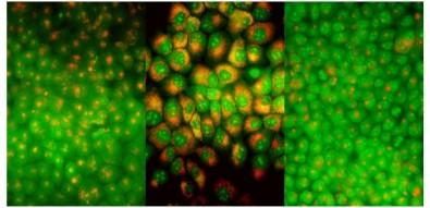 Estudo pode contribuir para aprimorar terapia fotodinâmica