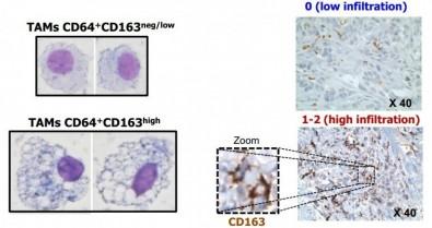 Células de la sangre pueden servir de 'termómetro' contra el cáncer de mama
