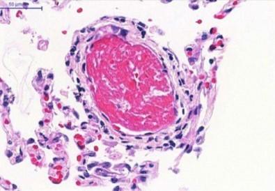 Debe tratarse al COVID-19 como una enfermedad trombótica, afirma una médica brasileña