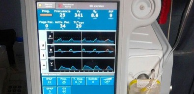 Empresa brasileira aprimora tecnologia de ventiladores pulmonares