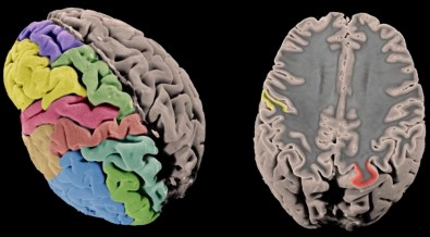 Study identifies 306 genetic variants linked to brain structure and predisposition to certain diseases