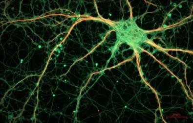 Pós-doutorado em neurofisiologia e reabilitação na USP