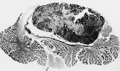 Leukemia drug shows the potential to treat aggressive pediatric brain cancer