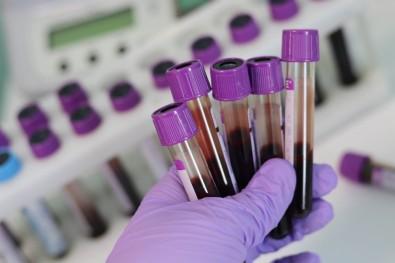 Proteína no sangue de pacientes com COVID-19 pode indicar evolução e gravidade da doença