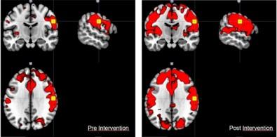 Realidade virtual aplicada à recuperação de pacientes de AVC e doenças neurodegenerativas