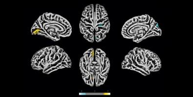 Un estudio comprueba que el SARS-CoV-2 afecta al cerebro. Detallan sus efectos en las células nerviosas