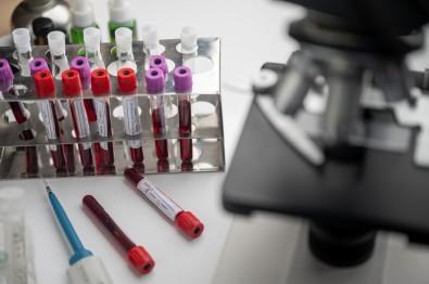 Estudo pode dar origem a teste capaz de prever se paciente com COVID-19 precisará ser hospitalizado