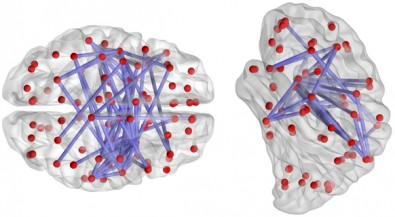 Atraso na transmissão de sinais entre neurônios pode gerar fenômenos como as crises epilépticas