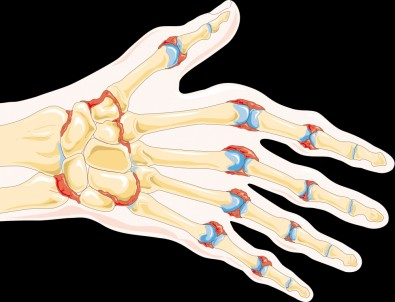 Descoberto mecanismo inflamatório responsável pela erosão óssea na artrite reumatoide