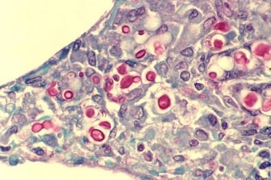 Terapia inovadora para o tratamento de câncer é promissora no controle de infecção fúngica