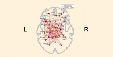 COVID-19 can alter the brain's functional connectivity pattern, study shows
