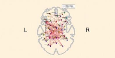 Un estudio indica que el COVID-19 puede alterar el patrón de conectividad funcional del cerebro