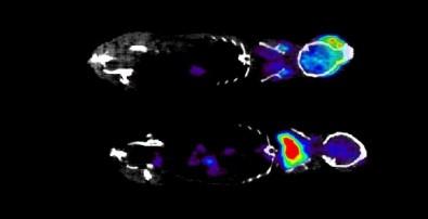 Proteína produzida pelo tecido adiposo marrom pode facilitar a perda de peso