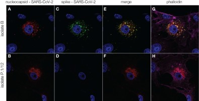 Antibodies against SARS-CoV-2 induced by prior infection are six times less effective against P.1 variant