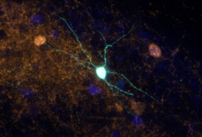 Pesquisadores usam engenharia genética para investigar mecanismos envolvidos em transtornos psiquiátricos