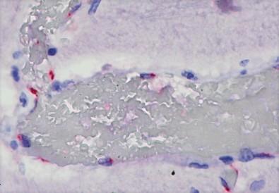 Ação direta do SARS-CoV-2 em vários órgãos pode causar reação imune exagerada em crianças