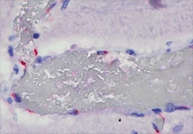 El SARS-CoV-2 puede causar una reacción inmunitaria extrema en los niños al afectar a diversos órganos