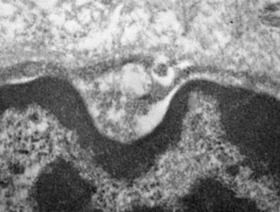 El nuevo coronavirus infecta a las células de las glándulas salivales y se replica en ellas
