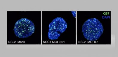 Novos estudos ajudam a entender o impacto do novo coronavírus no cérebro humano