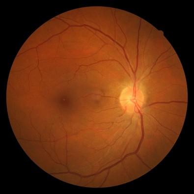 Pós-doutorado em mecanismos moleculares da retinopatia falciforme na Unicamp