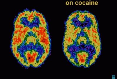 Estudo pode ajudar a prever recaída em dependentes de cocaína