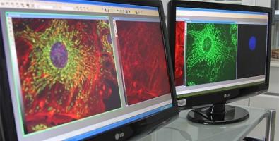 Vírus geneticamente modificado combate câncer de próstata