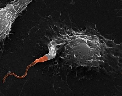 Mecanismo celular que torna leishmaniose mais grave é desvendado