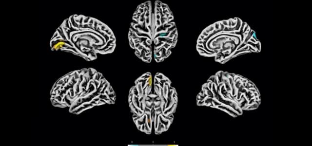 Estudo comprova que novo coronavírus afeta o cérebro e detalha seus efeitos nas células nervosas
