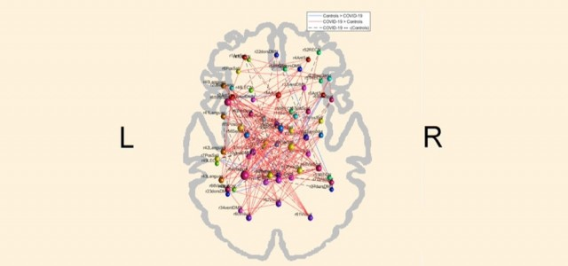 COVID-19 pode alterar o padrão de conectividade funcional do cérebro, aponta estudo